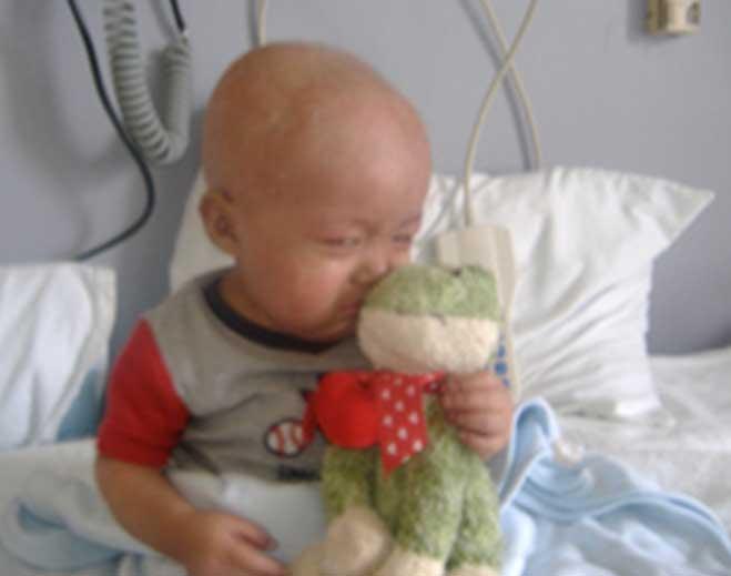 alex-leukemia-story-659x519